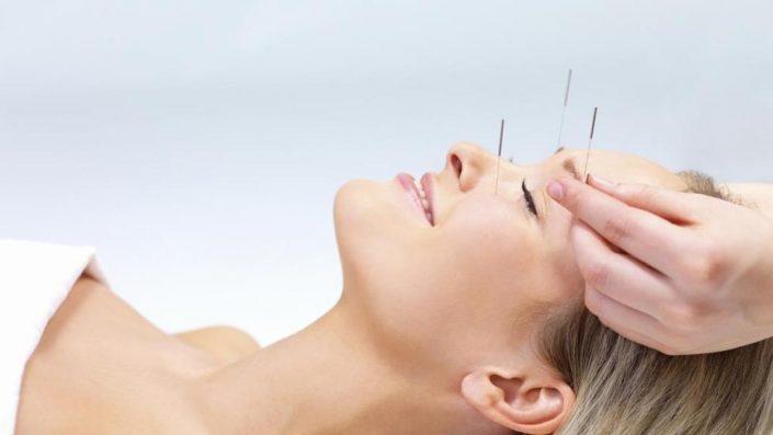 L'Agopuntura: un ponte tra la medicina e le energie vitali che animano il nostro corpo